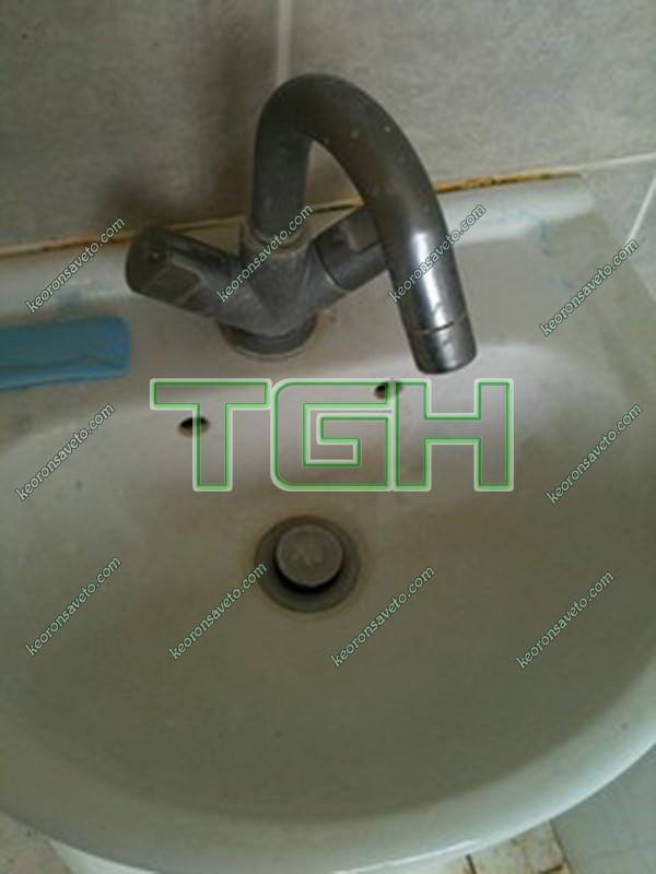 Bồn rửa mặt bị ố bẩn